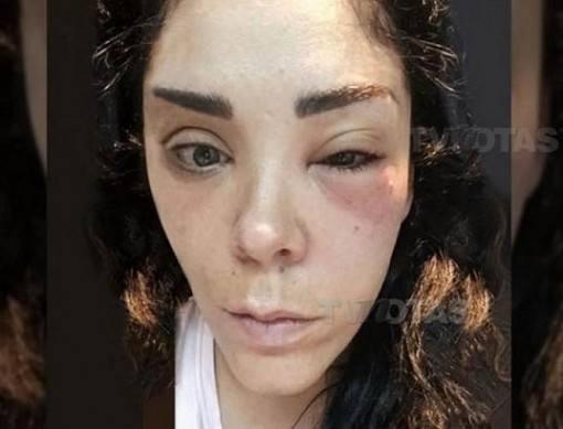 irma-da-anahi-internada-apos-tratamento-estetico-2